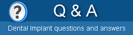Dental implant questions and answers